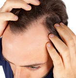 Man controls hair loss Royalty Free Stock Photography