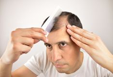 Hair loss. Man controls hair loss with a comb royalty free stock photography
