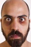Man with dark circles Stock Photos