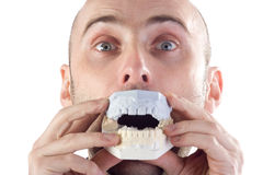 Man with dental mould Royalty Free Stock Photos