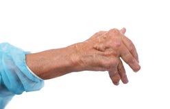 Man with a diagnosis of polyarthritis. Stock Photos