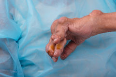 Man with a diagnosis of polyarthritis. Stock Photo