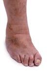 Man with a diagnosis of polyarthritis. Stock Image