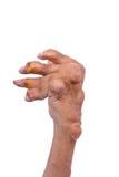 Man with a diagnosis of polyarthritis. Royalty Free Stock Photo