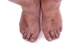 Man with a diagnosis of polyarthritis. Royalty Free Stock Photos