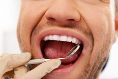 Man doing teeth checkup Royalty Free Stock Images