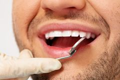 Man doing teeth checkup Stock Photography