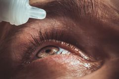 A man drips open human eye with bright red arteries drops to improve vision close up. irritation and redness of the eyeball. stock photography