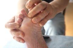 Foot with dry, peeling skin Stock Photos