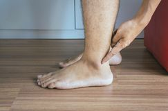 Man dry skin or pigmentation on feet with anklebone,Close up,Skin health concept Royalty Free Stock Photo