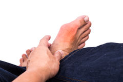 Man embraces foot with painful and swollen gout inflammation Royalty Free Stock Images