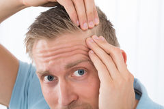 Man Examining His Hair Royalty Free Stock Image