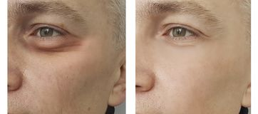 Man, eye swollen before and after procedures. Removal royalty free stock photography