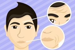Man face lifting concept banner, cartoon style royalty free illustration