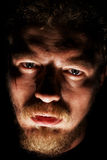 Man face with small sores. In black Stock Photography