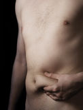 Man with fat deposit on stomach