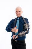 Man with fractured arm and thumb up Stock Images