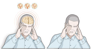 Man get headache - healthcare and migraine concept - illustration. Migraine and  the headache, stroke style illustration depicting. There is a view of brain and Stock Images