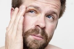 The man got eye injury and is experiencing pain, holding his head by hand. Close-up royalty free stock photo