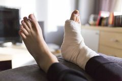 Grounded at home with a leg in a cast. Man grounded at home with a leg in a cast royalty free stock image