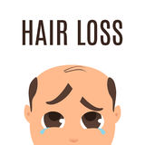 Man with hair loss problem. Man suffering from hair loss. Alopecia treatment and transplantation concept. Can be used by clinics and diagnostic centers Stock Photography
