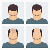 Man hair loss stages Royalty Free Stock Image