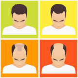 Man hair loss stages Stock Photos