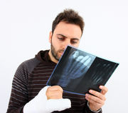 Man with a hand fracture and x-ray film Royalty Free Stock Image