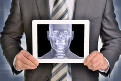 Man hands using tablet pc. Image of x-ray head on Royalty Free Stock Photo