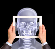 Man hands using tablet pc. Image of x-ray head on Royalty Free Stock Photos