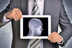 Man hands using tablet pc. Image of x-ray head on Stock Image