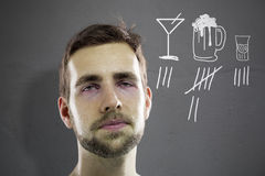 Man with hangover Stock Images