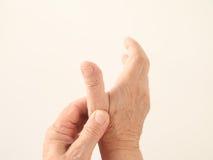 Man has an aching thumb Stock Photography
