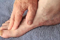 Man has dry, flaking skin on foot Stock Photography