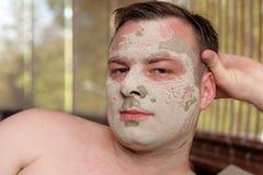 Man has peeling face Stock Photo