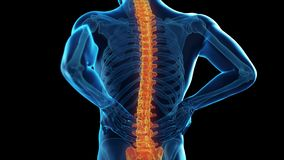 A man having backache