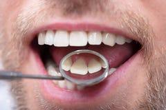 Man Having Dental Checkup. Close-up Of A Man Having Dental Check Up With Dentist Mirror stock images