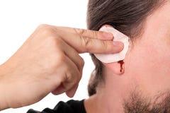 Man having ear bleeding, isolated on white, concept otitis media Royalty Free Stock Photos
