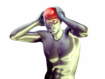 Man with headache Stock Photography