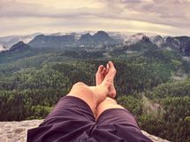 Man hiker sweaty legs with horrible painful callus resting on peak. Man hiker sweaty legs with horrible painful callus resting on mountain peak. Misty rocky royalty free stock photo