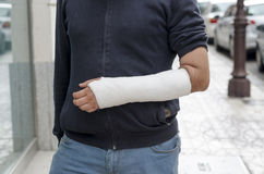 Man with his broken arm. Arm in cast. Stock Image