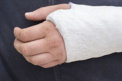 Man with his broken arm. Arm in cast. Stock Images