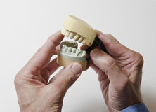 Man holding dental mold Royalty Free Stock Images