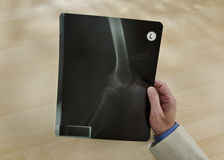 Man holding knee x-ray Royalty Free Stock Images