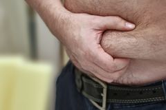 Man holds a fold of skin on a large fat stomach. Concept of excess weight, obesity, fat abdomen.  stock photo