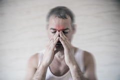 The man holds his nose and sinus area with fingers in obvious pain from a head ache in the front forehead area. Sinus pain Royalty Free Stock Images