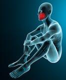 Man human body x-ray jaw teeth pain Royalty Free Stock Photos