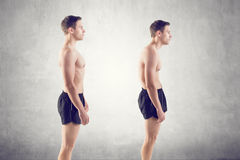 Man with impaired posture position defect. Man with impairMan with impaired posture position defect scoliosis and ideal bearing royalty free stock photos