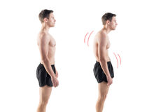 Man with impaired posture position defect Stock Photos