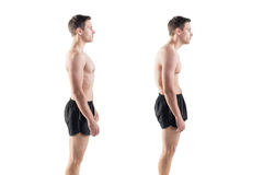 Man with impaired posture position defect. Scoliosis and ideal bearing royalty free stock photos